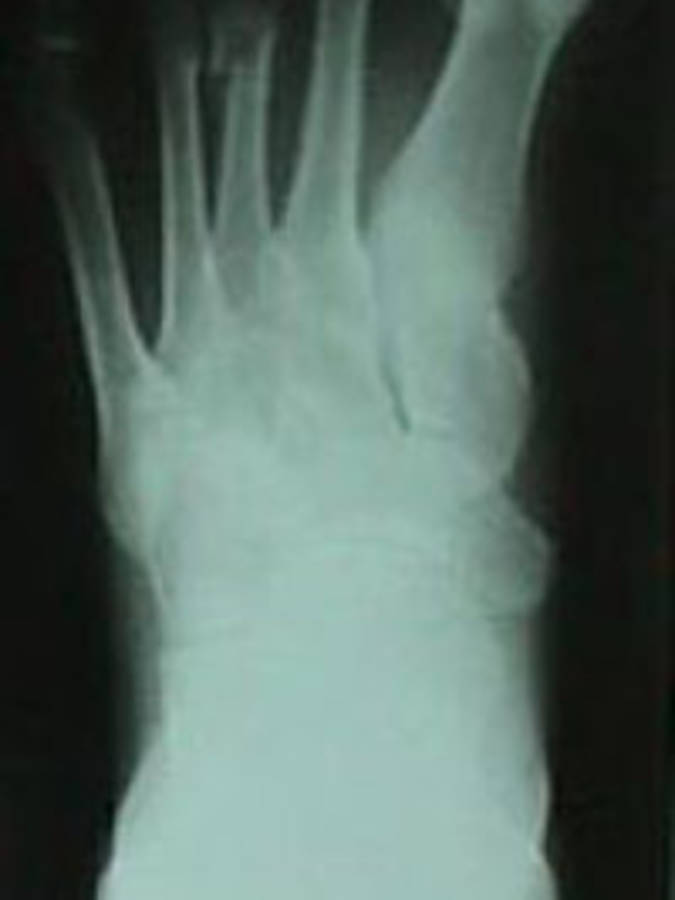 3rd Metatarsal Fracture (AP View)