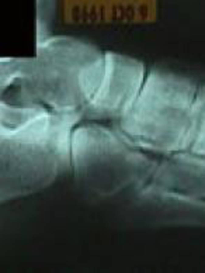 3rd Metatarsal Fracture (Lateral View)