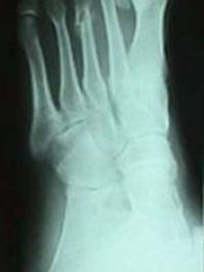 3rd Metatarsal Fracture (Oblique View)