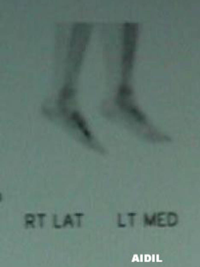 Bone Scan of 3rd Metatarsal Stress Fracture (Lateral Right / Medial Left View)