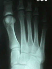 X-Ray of 3rd Metatarsal Stress Fracture (Anterior View)
