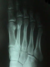 X-Ray of 3rd Metatarsal Stress Fracture (Plantar View)