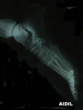 X-Ray of 3rd Metatarsal Stress Fracture (Lateral View)