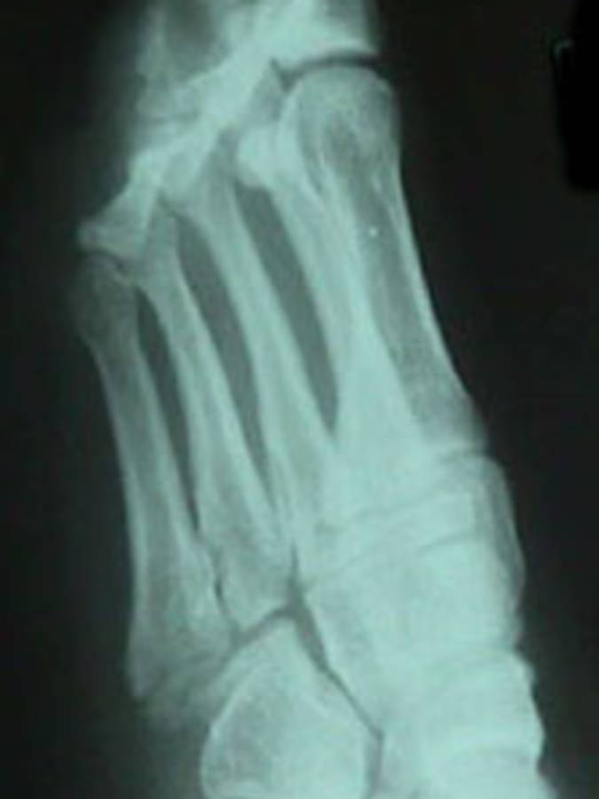 5th Metatarsal Fracture (Lateral View)