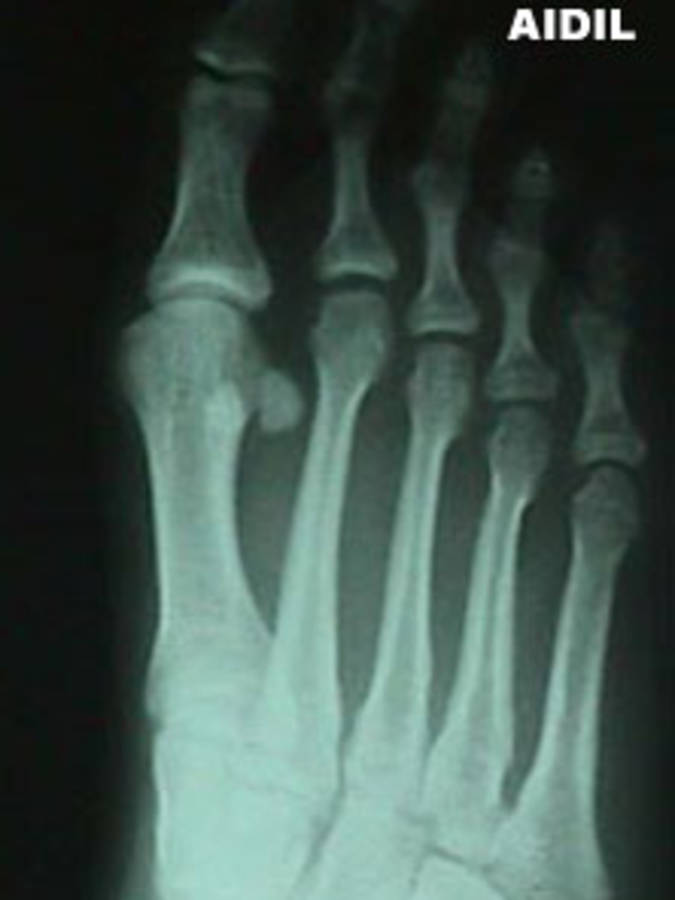 5th Metatarsal Fracture (Oblique View)