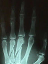 4th Finger (distal phalanx) Fracture (AP View)