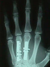 3rd and 4th Metacarpal After Repair (AP View)
