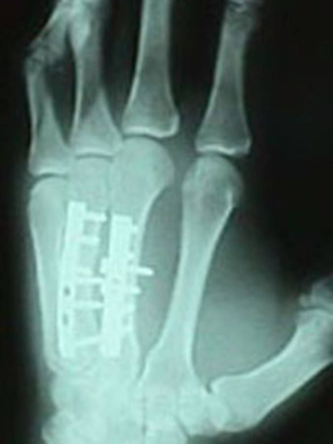 3rd and 4th Metacarpal After Repair (Oblique View)