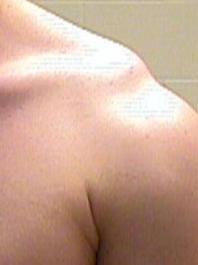 Shoulder Separation - 3 degrees (View of Both Shoulders - Actual Picture)