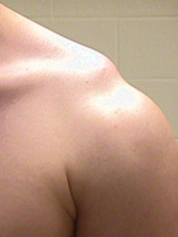 Shoulder Separation - 3 degrees (View of Both Shoulders - Actual Picture, Close-Up)