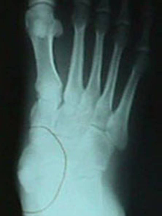 Accessory Navicular (AP View)