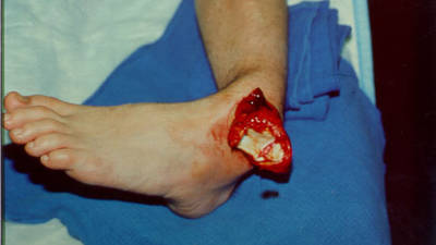 Open Ankle Dislocation (Actual View 1)