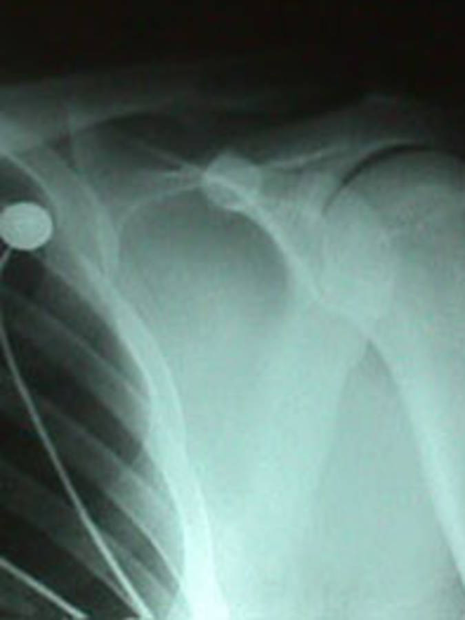 Shoulder Dislocation (Reduced AP View 2)