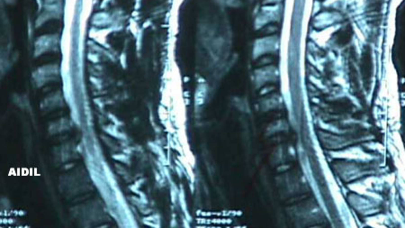 Cervical Spine - Herniated Discs (MRI 1)