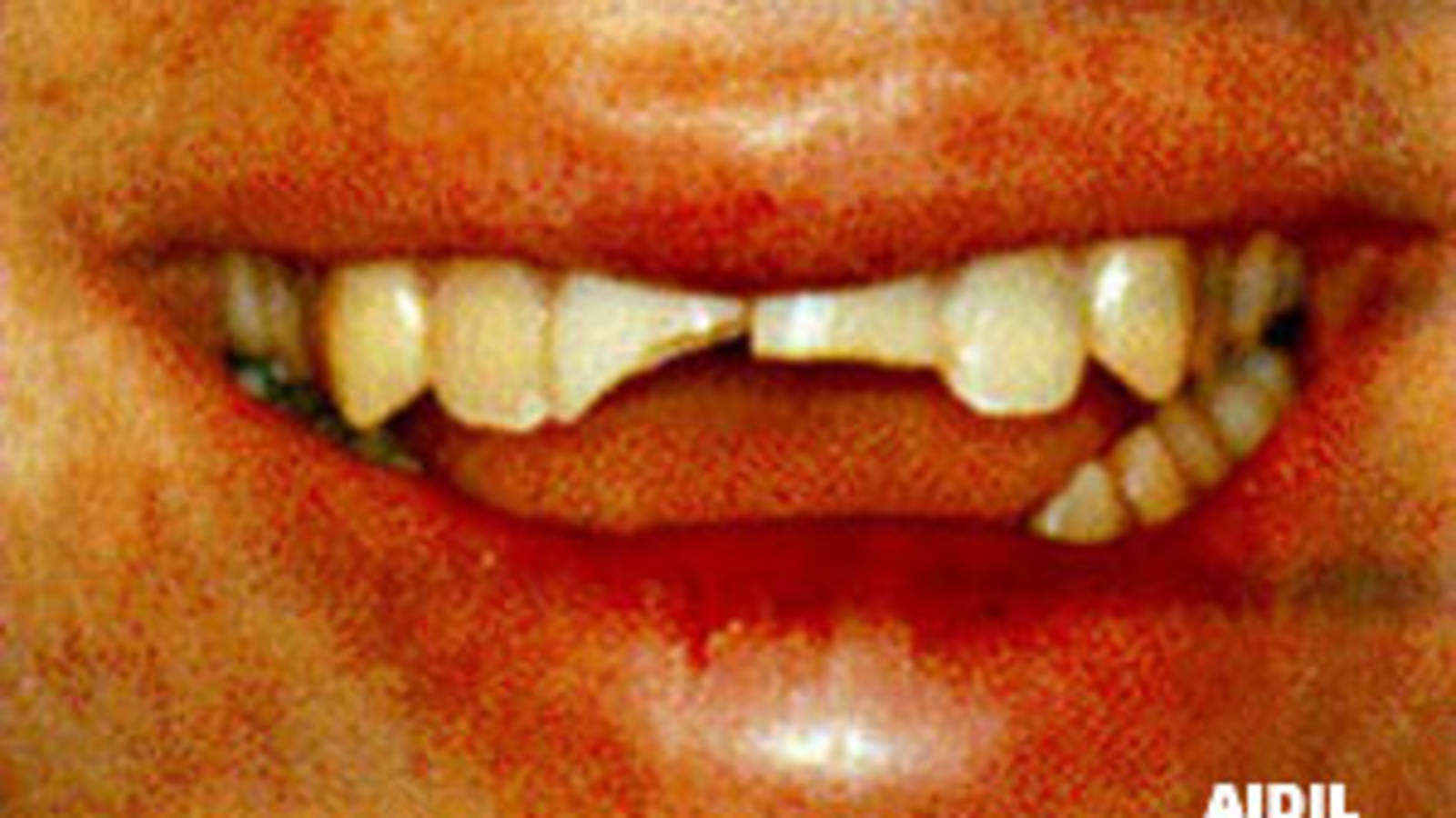 Mouth - Fractured Teeth