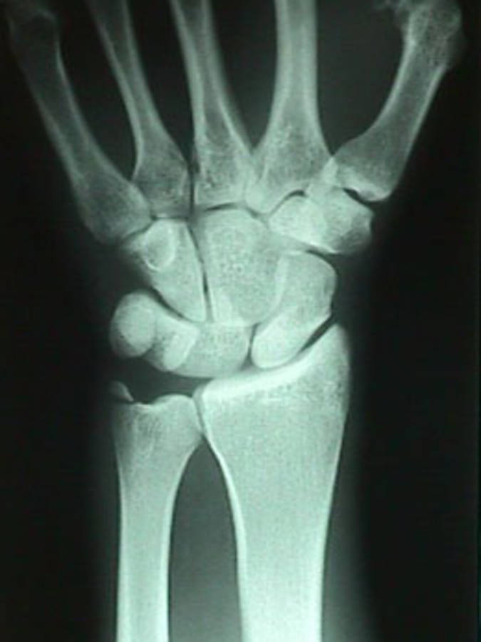 AP View of Lunate Dislocation w/ Ulnar Styloid Fracture