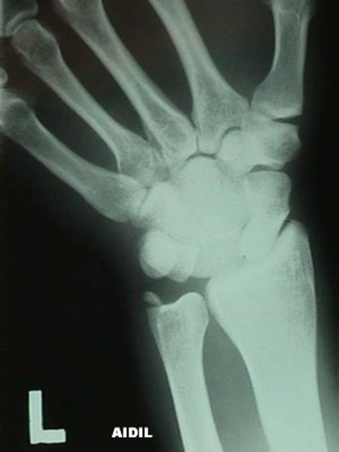 AP View of Lunate Dislocation w/ Ulnar Styloid Fracture and Ulnar Deviation