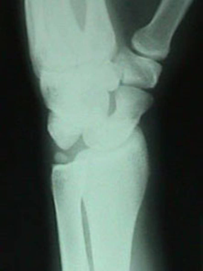 Oblique View of Lunate Dislocation w/ Ulnar Styloid Fracture and Internal Rotation