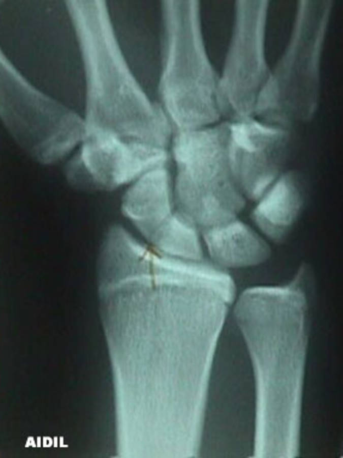 AP View of a wrist with a Scaphoid Fracture