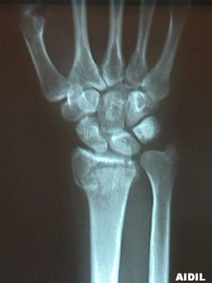 AP View of Colles Fracture