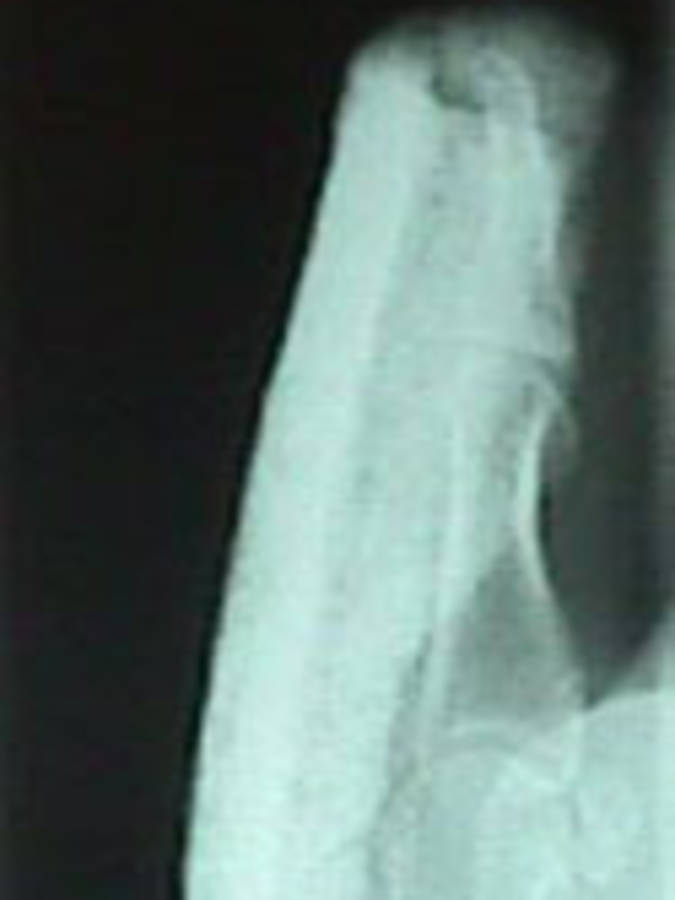 Lateral View of Thumb Dislocation Reduced/Splinted
