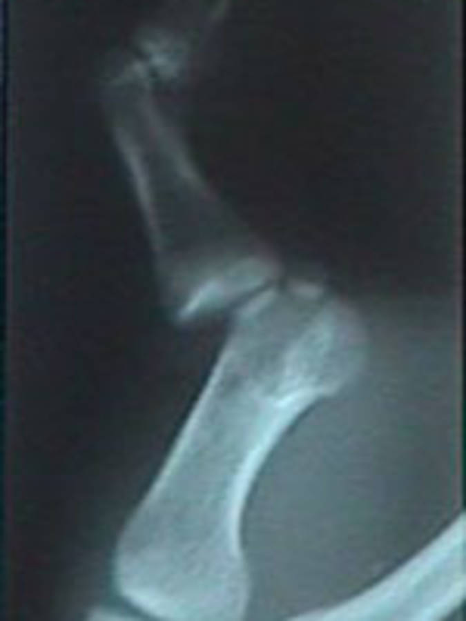 Oblique View of Dislocated Thumb