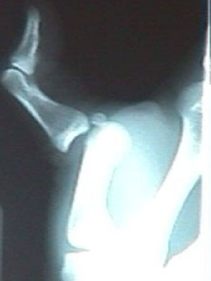 Lateral View of Dislocated Thumb