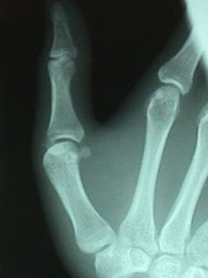 Lateral View of Thumb Fracture