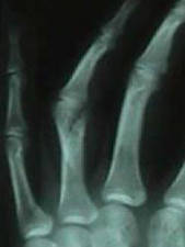 Oblique View of 4th Finger (proximal phalanx) Oblique Fracture