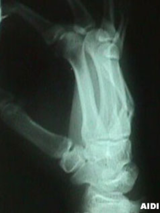 5th Metacarpal (Boxer's) Fracture (Lateral View)