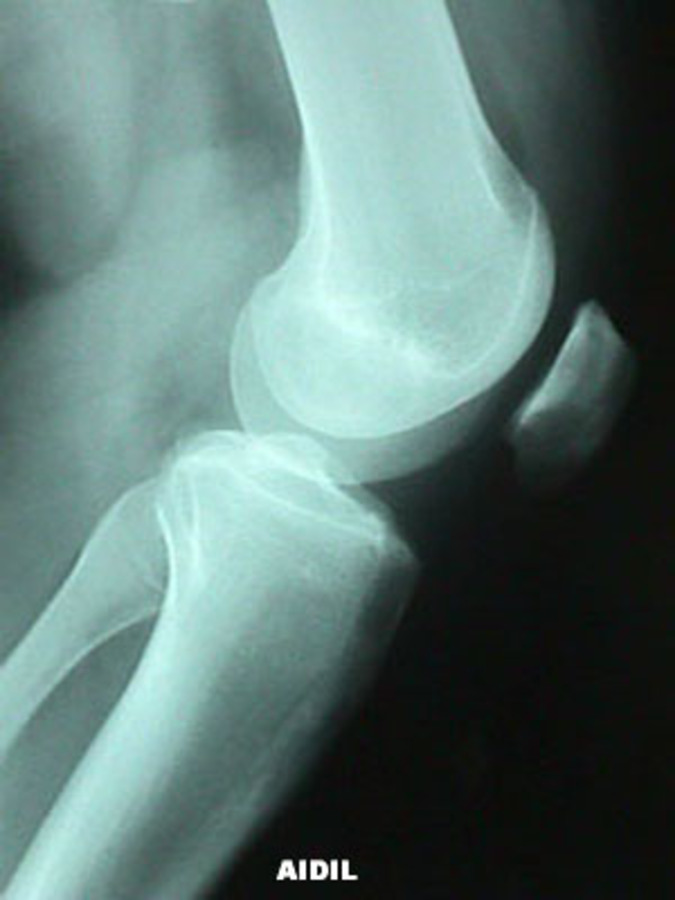 View of Epiphyseal Fracture of Distal Femur (Salter Harris III) Before Surgery