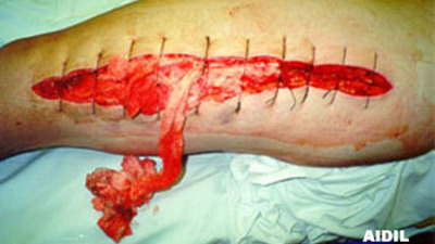 Actual Picture of Compartment Syndrome