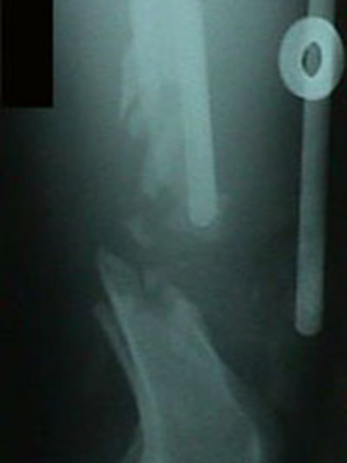 Lateral View of Femur Fracture During Surgery