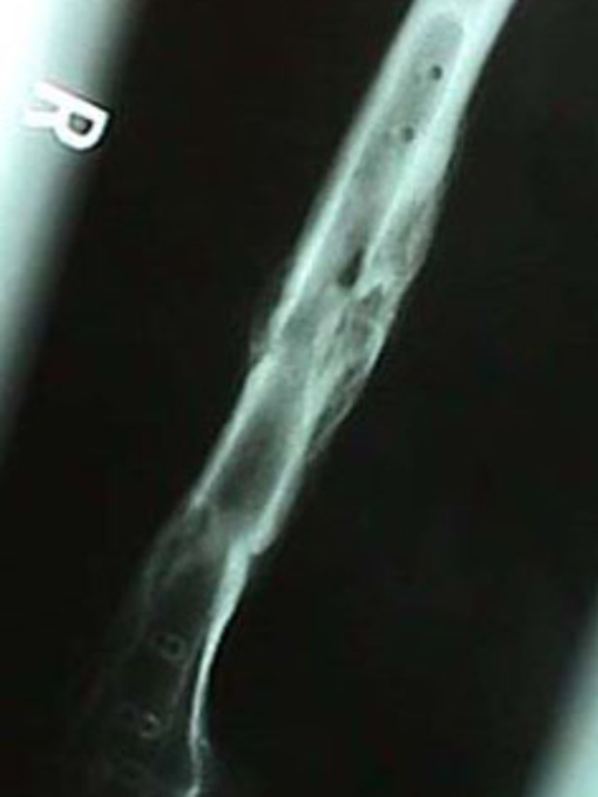 Lateral View of Femur Fracture with Hardware Removed