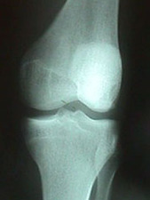 Lateral View of Dislocated Knee After Reduction