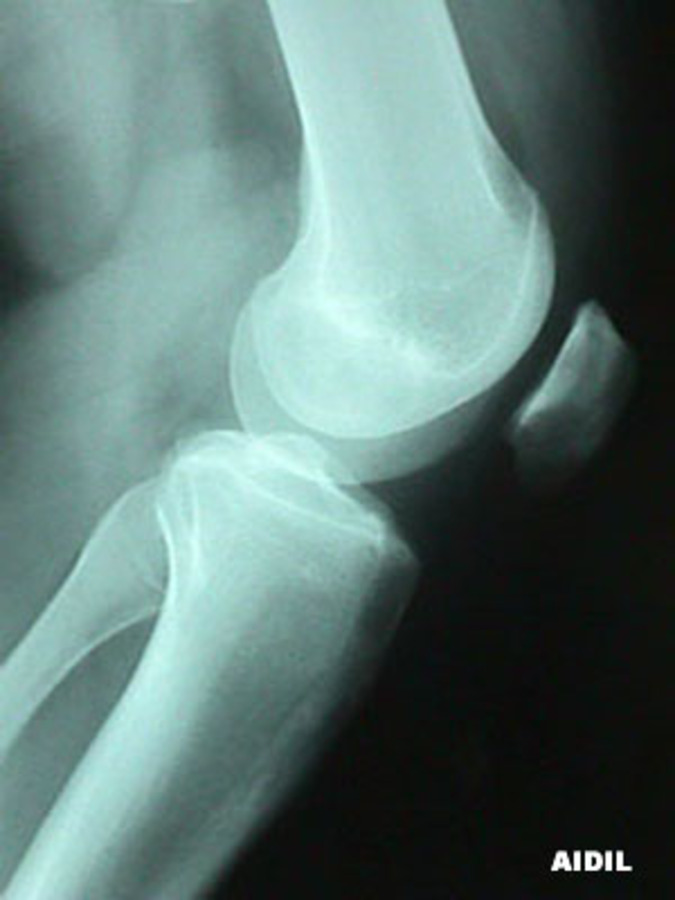Lateral View of Patella Malalignment