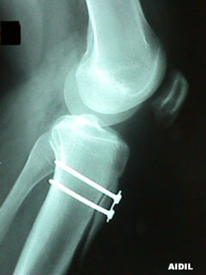 Lateral View of Patella Malalignment After Repair