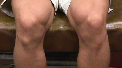 AP View of Osgood-Schlatter Disease