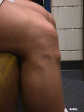 Close-up Lateral View of Knee with Osgood-Schlatter Disease
