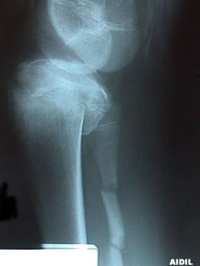 Lateral View of Tibial Plateau with Fibula Fracture
