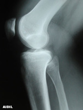 Lateral View of Tibial Plateau Fracture