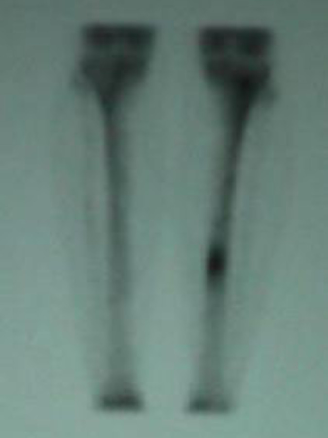 AP View of Bone Scan of Tibial Stress Fracture