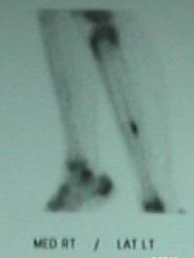 Medial Right/Lateral Left View of Bone Scan of Tibial Stress Fracture