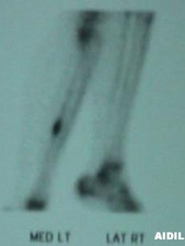 Lateral Right/Medial Left View of Bone Scan of Tibial Stress Fracture