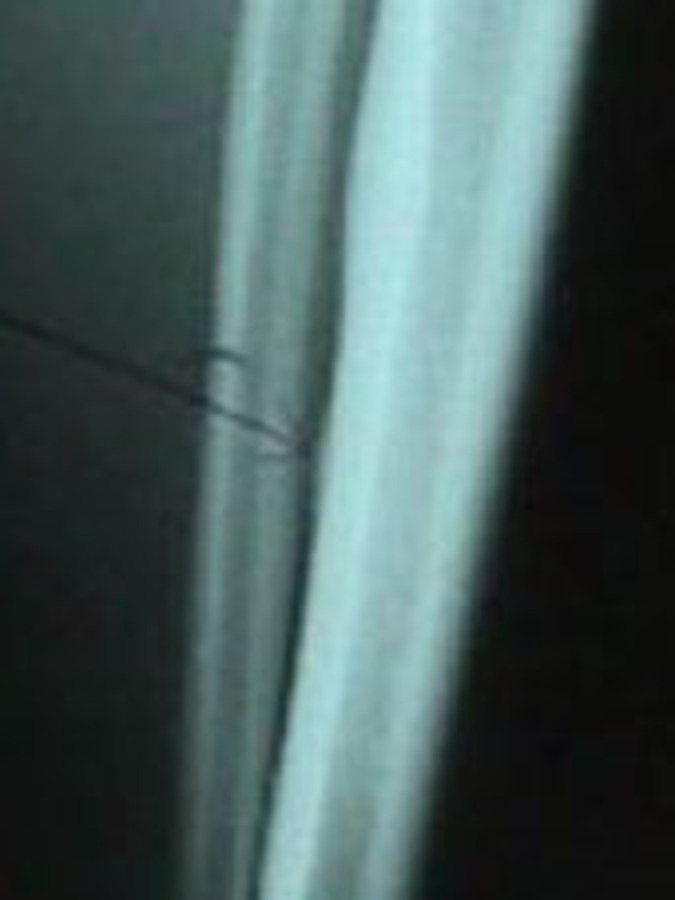 AP View of X-Ray of Tibial Stress Fracture