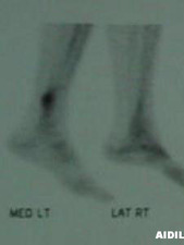 Lateral Right/Medial Left View of Bone Scan of Fibula Stress Fracture