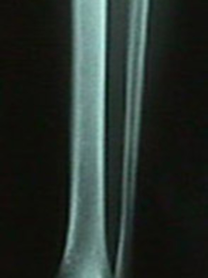 AP View of X-Ray of Fibula Stress Fracture