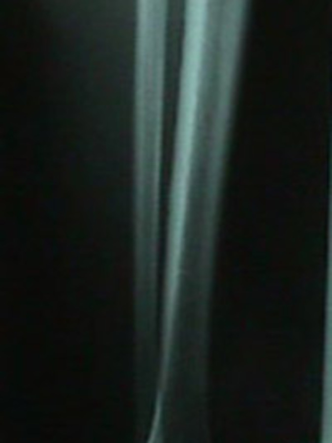 Lateral View of X-Ray of Fibula Stress Fracture