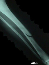 AP View of Oblique Tibia / Fibula Fracture
