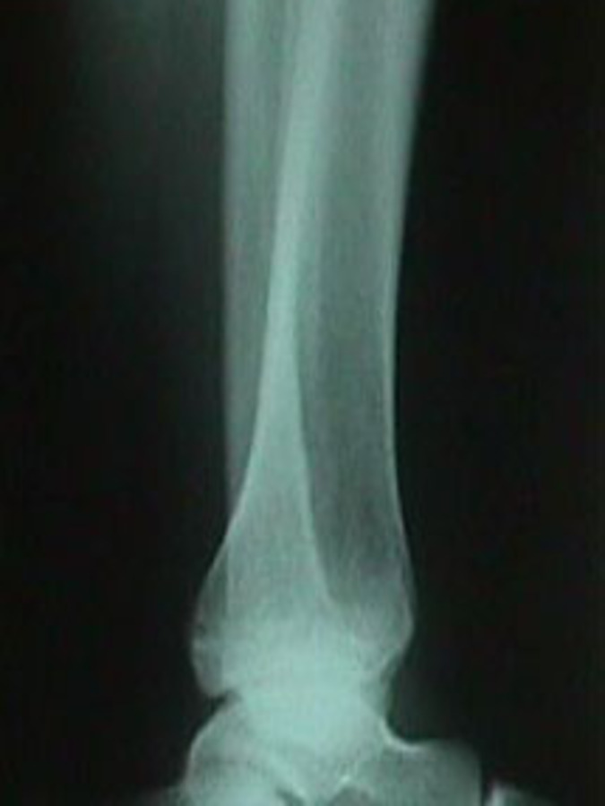 Lateral View of Oblique Tibia / Fibula Fracture